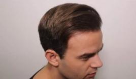 hajbeültetési klinika